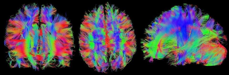 MRT Darstellung Von Nerven