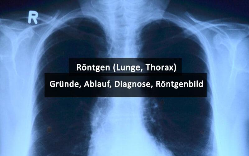 Röntgen Lunge Thorax Gründe Ablauf Diagnose Röntgenbild