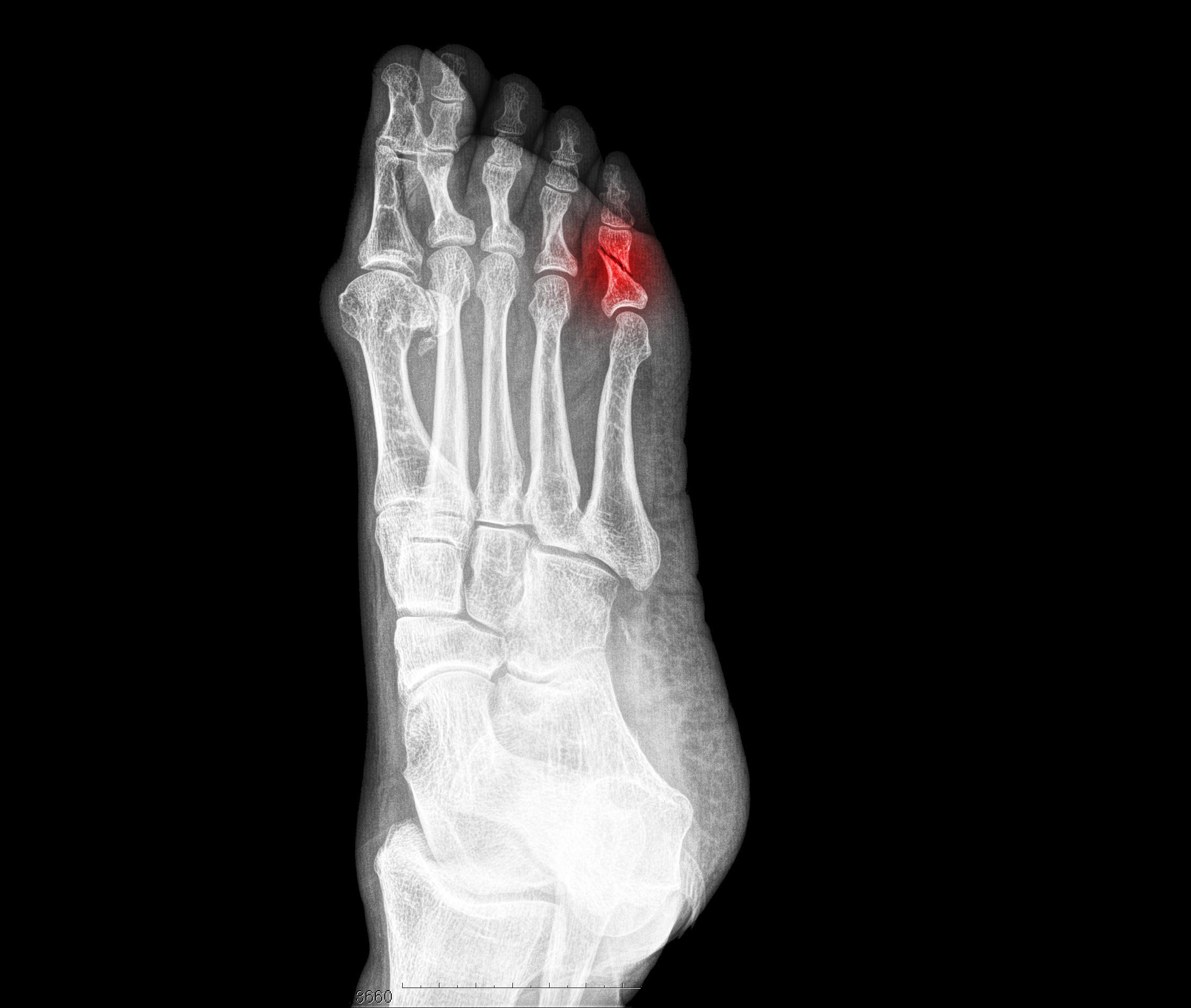 Röntgen Fuss Gebrochen