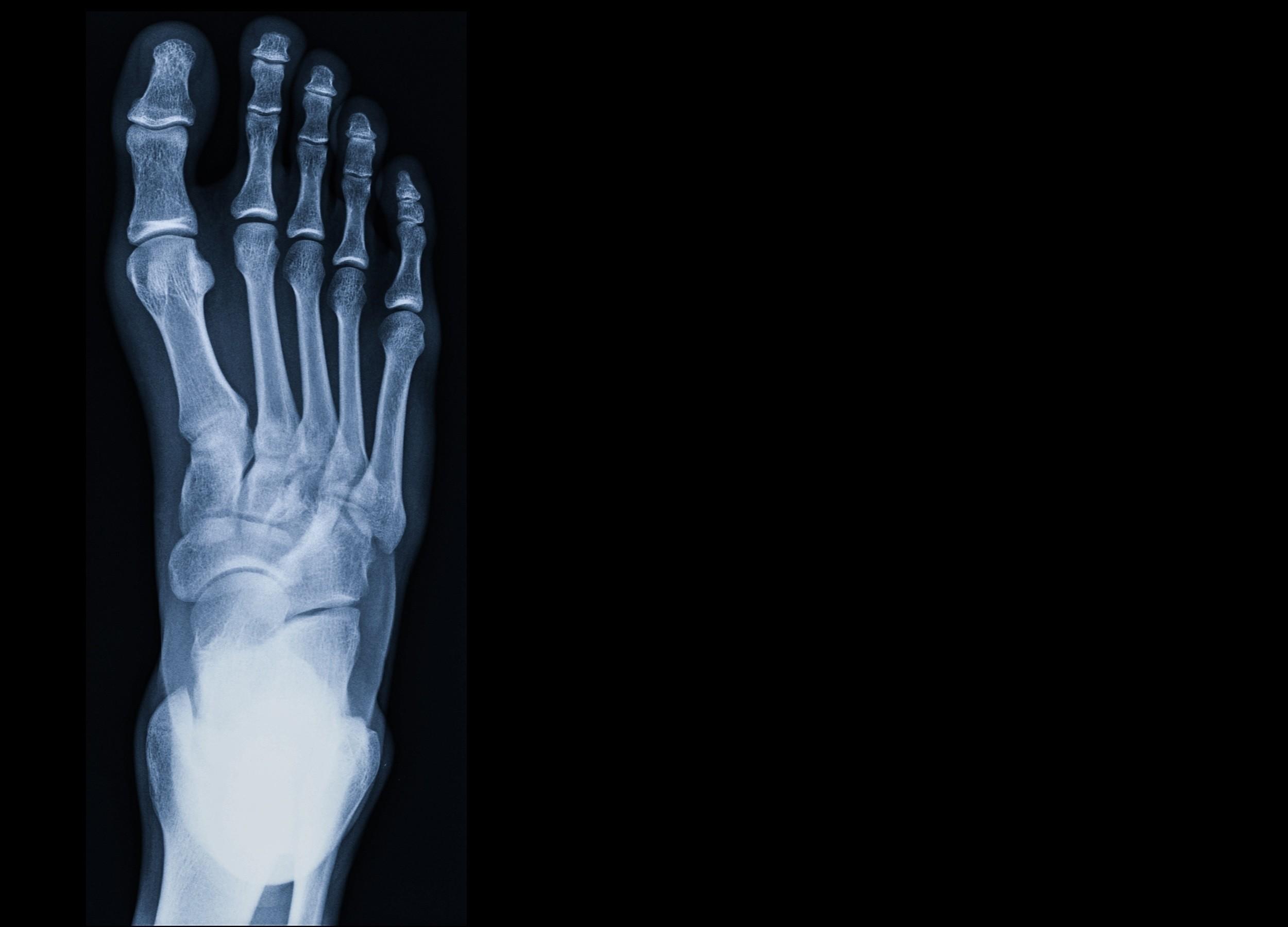 Röntgen Fuss