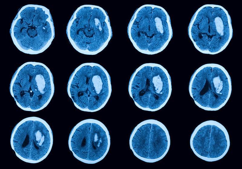 CT Kopf Tumor