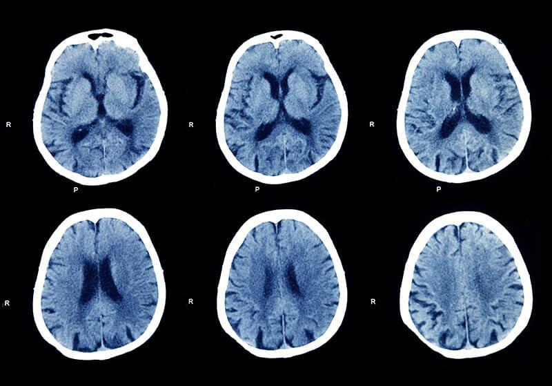 CT Kopf: Gesunde Aufnahme