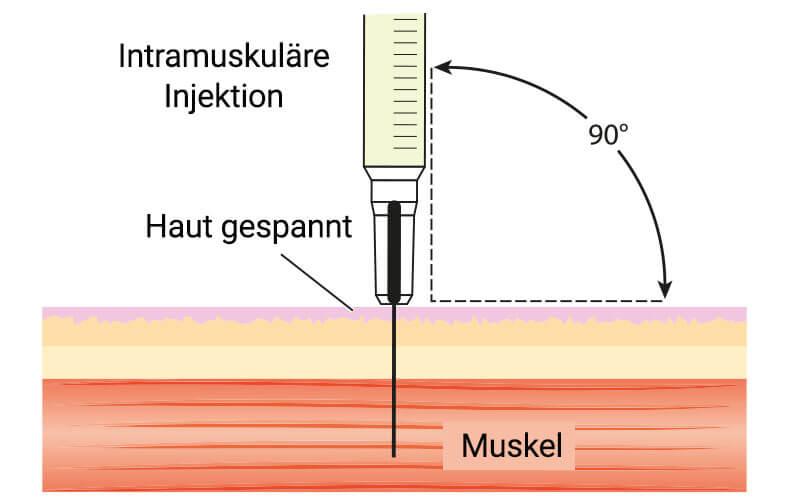 Intramuskuläre Injektion Anleitung