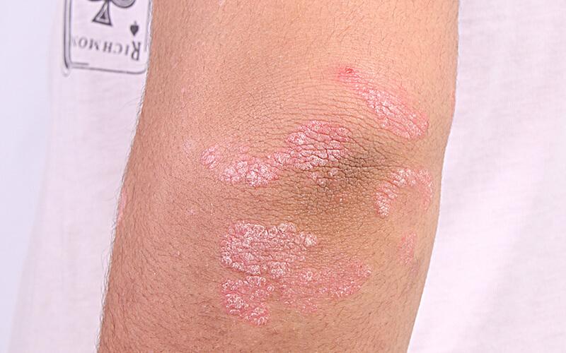Schuppenflechte (Psoriasis)