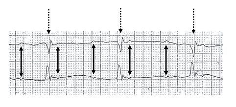 AV-Block (Atrioventrikulärer Block, Überleitungsstörung)