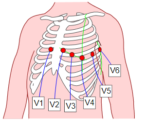 EKG: Anlegen der Elektroden nach Wilson