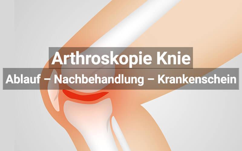Arthroskopie Knie