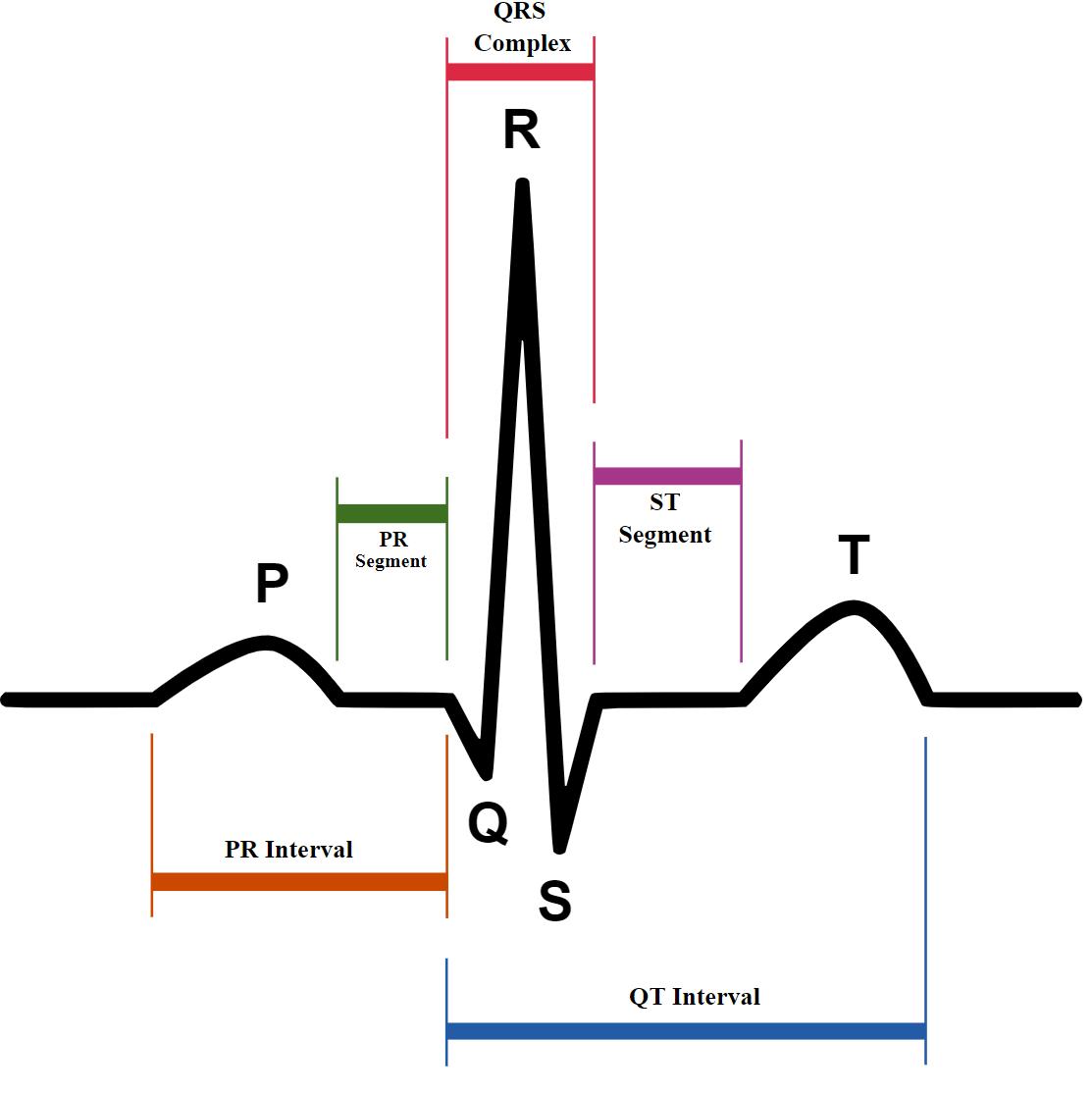 EKG: Auswertung Kurve