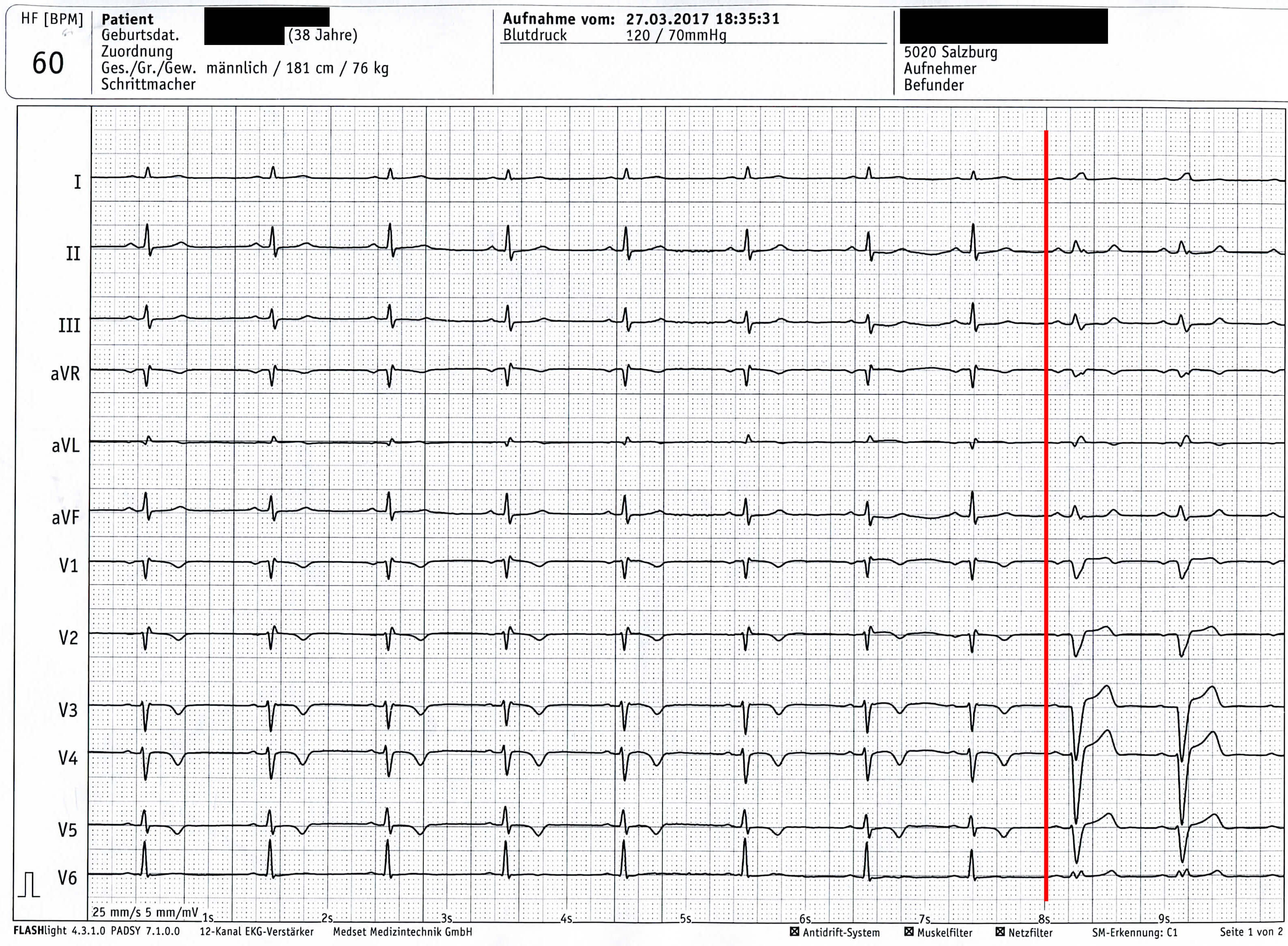 Unauffälliges EKG