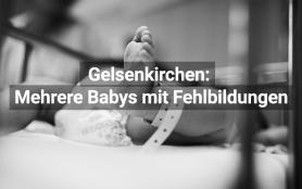 Gelsenkirchen: Babys mit Fehlbildungen geboren