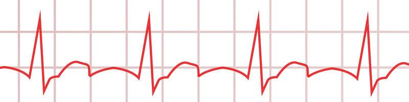 Langzeit-EKG Bradykardie