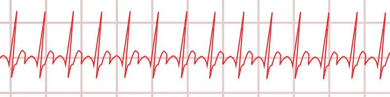 Langzeit-EKG Tachykardie