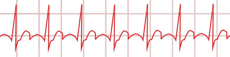 Langzeit-EKG Normale Herzfrequenz