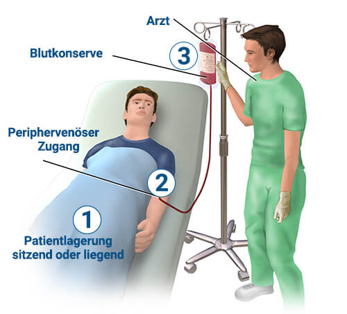 Bluttransfusion Durchführung (1)