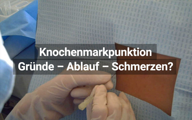Knochenmarkpunktion