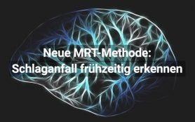 MRT Methode zur Früherkennung von Schlaganfall
