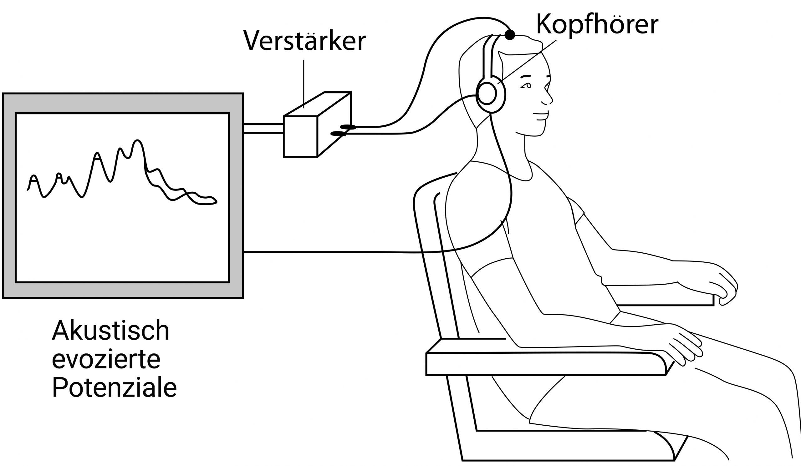 Akustisch Evozierte Potenziale