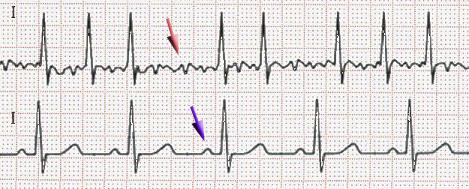 EKG Vorhofflimmern und Sinusrhythmus