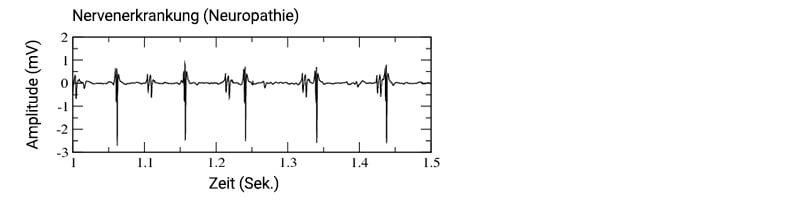 EMG Nervenerkrankung (Neuropathie) (1)