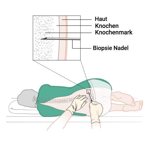 Knochenmarkbiopsie Ablauf