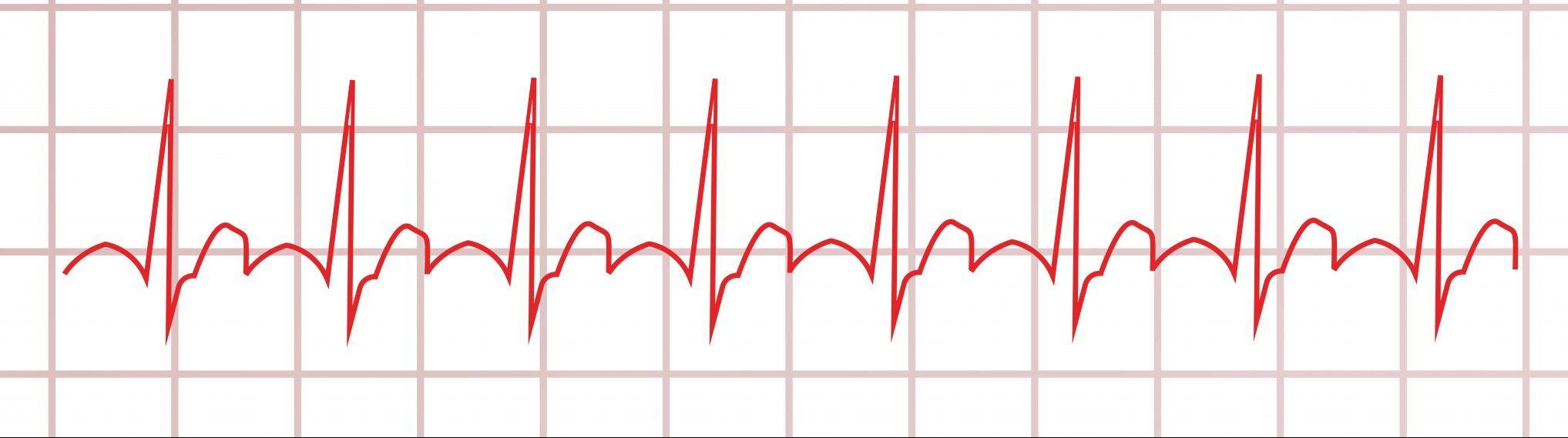 EKG: Unauffälliger Befund