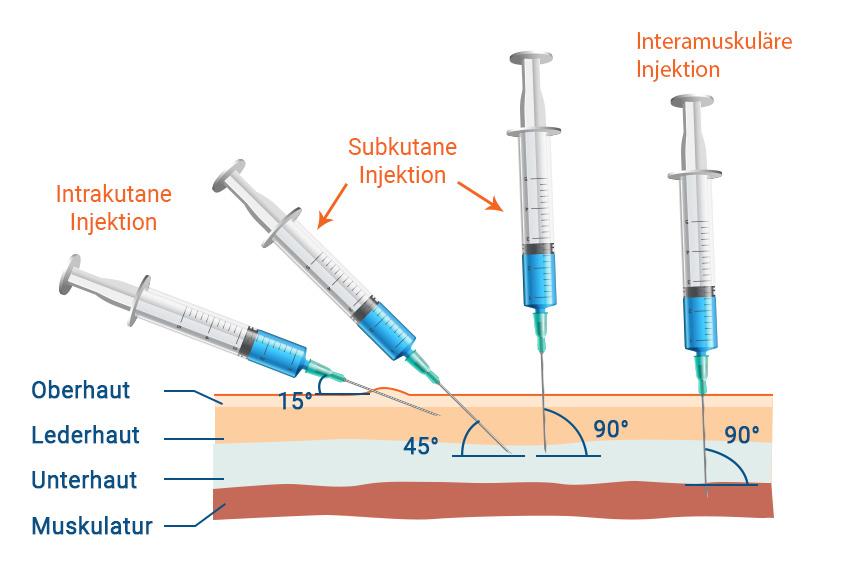 InjektionIntrakutane Subkutane Interamuskuläre Injektion