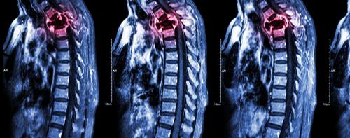 MRT Wirbelsäule Metastasen