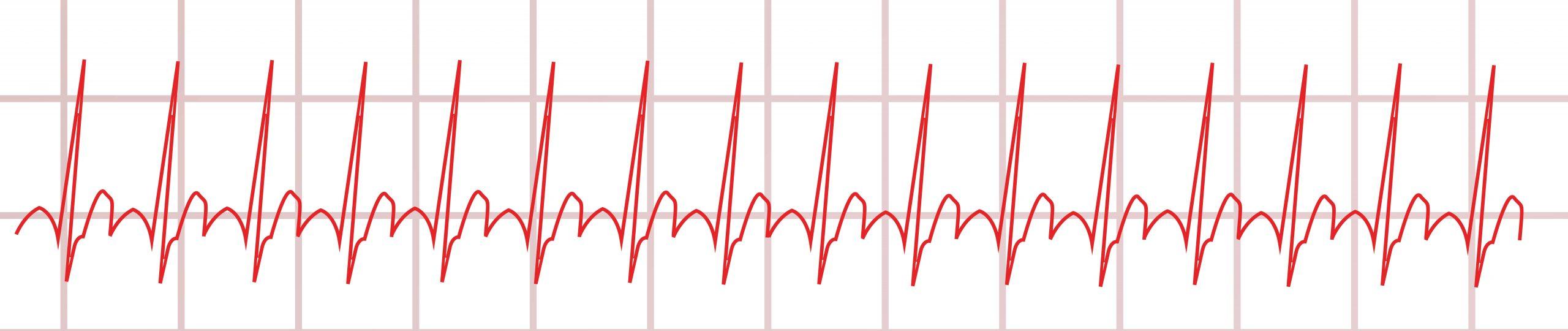 EKG: Sinustachykardie