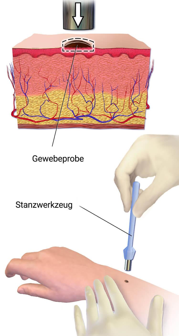 Hautbiopsie Durchführung