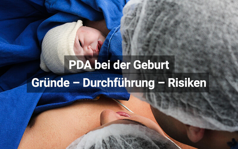 PDA Bei Der Geburt