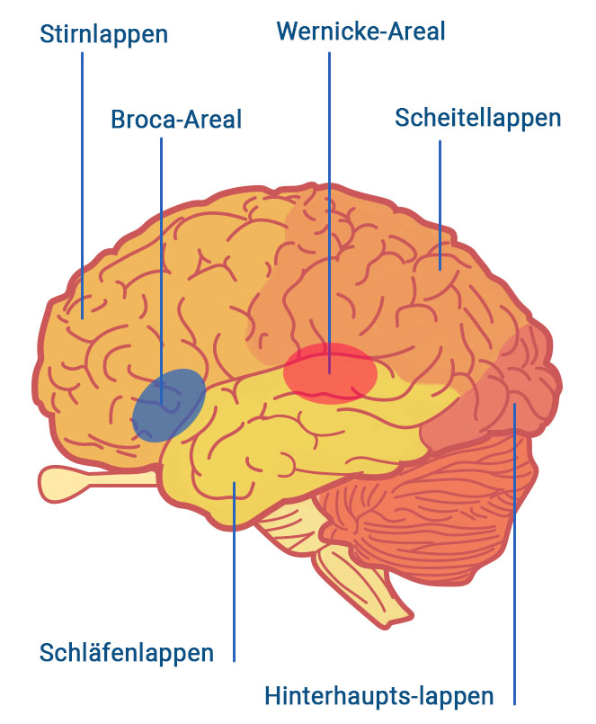 Aphasie Gehirnareale