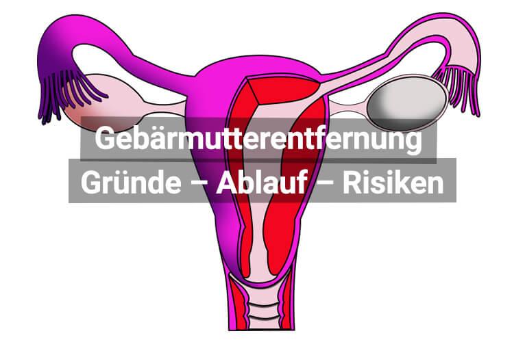 Gebärmutterentfernung erfahrungen nach Erfahrungen Entfernung