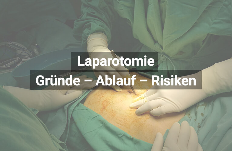 Laparotomie