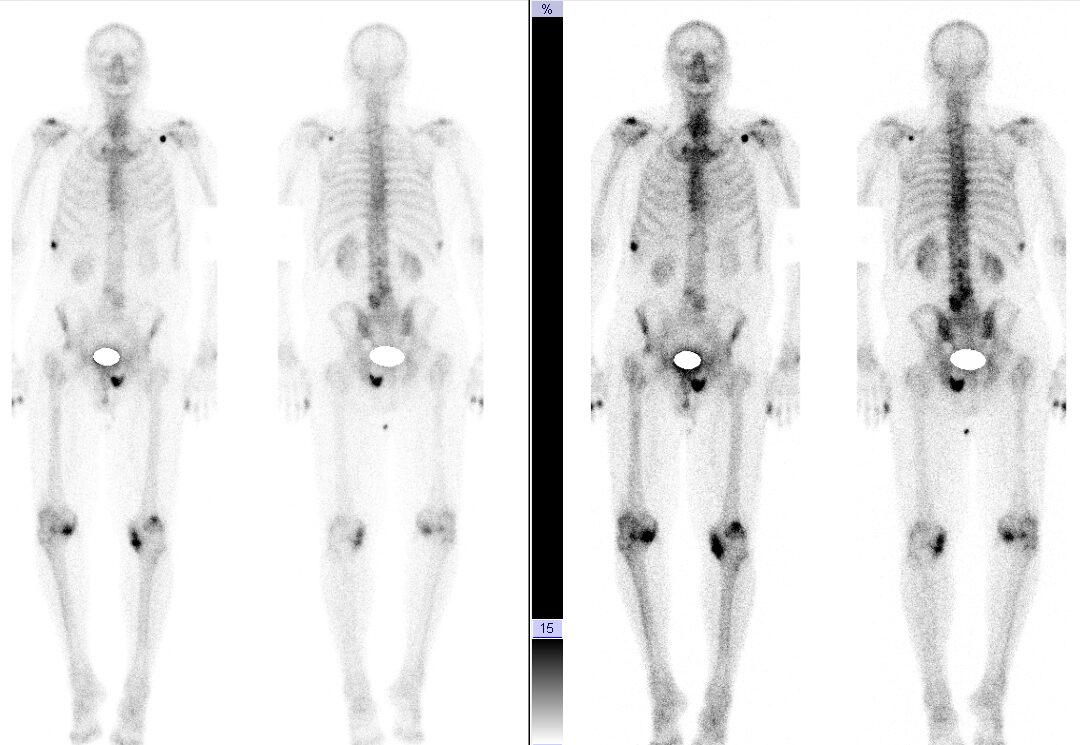 Verlauf Prostatakrebs Knochenszintigramm