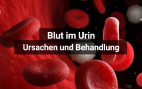 Blut Im Urin