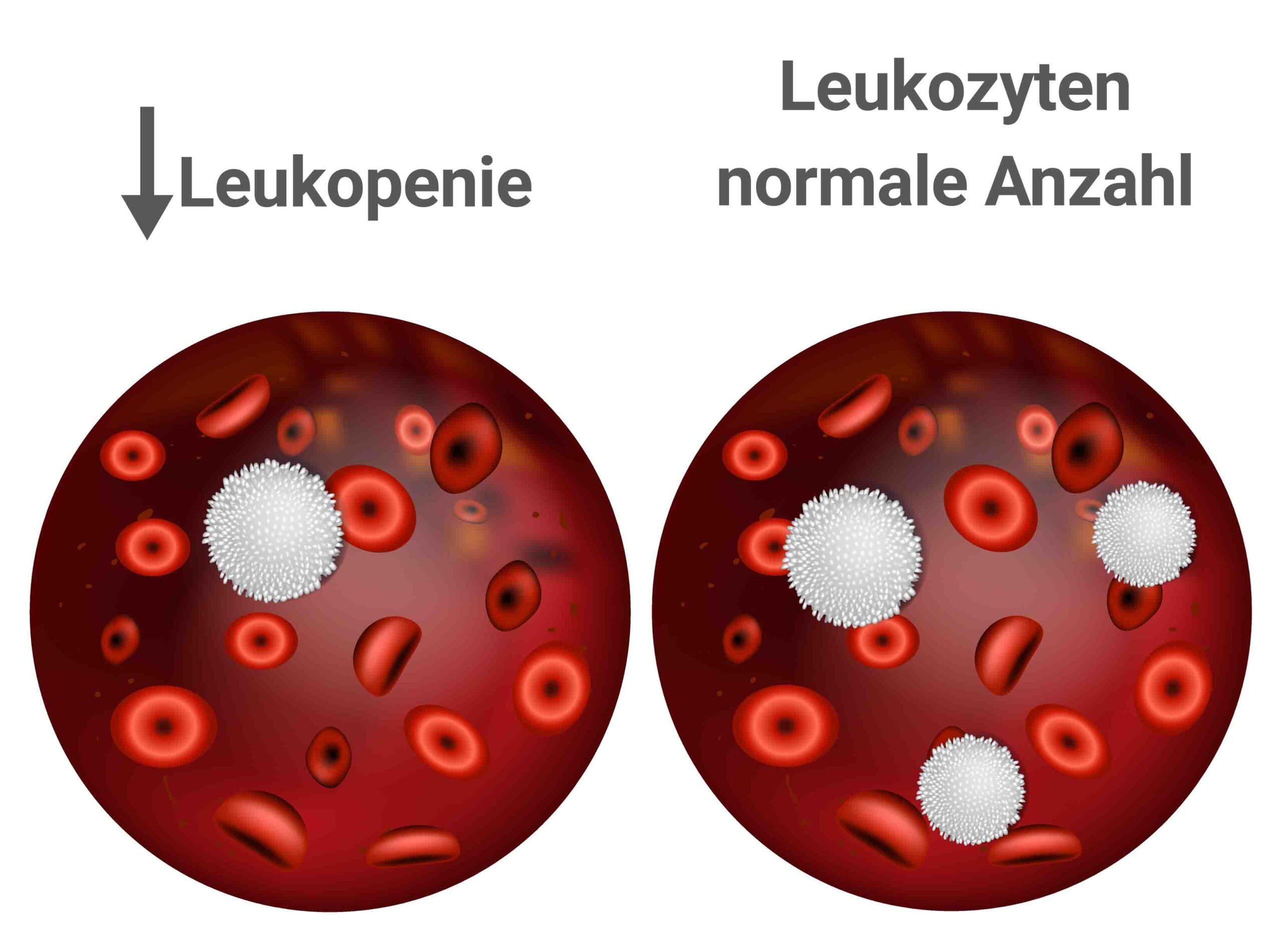 Leukopenie Normale Leukozyten