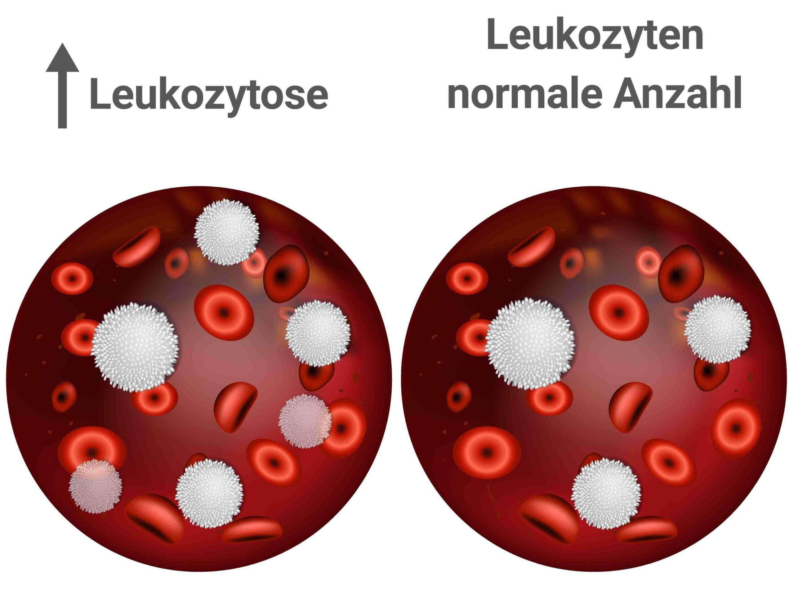 Leukozytose Grafik