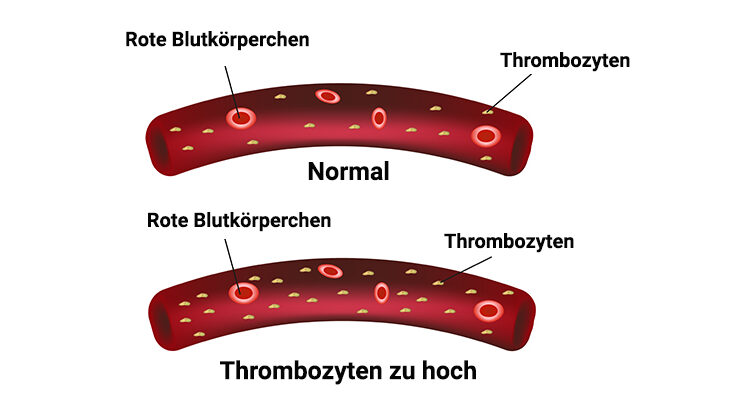 Normal Und Thrombozytose