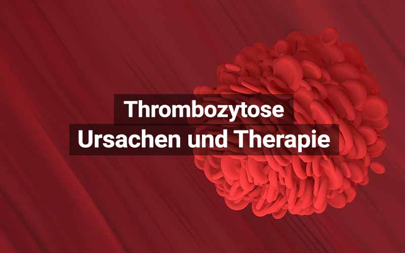 Thrombozytose