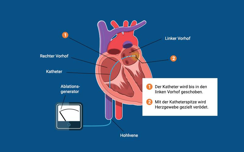 Ablation Herz Ablauf